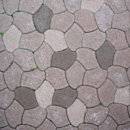 crazy paving | radiology reference article | radiopaedia.org